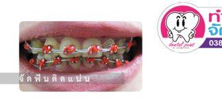 การจัดฟันแบบติดแน่น