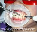5.เป่าฟันและเหงือกในบริเวณที่จะสัมผัสกับน้ำยาฟอกสีฟันให้แห้งสนิท.