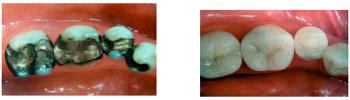 การอุดฟันสีเหมือนฟัน