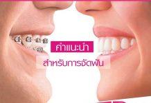 จัดฟัน คำแนะนำในการจัดฟัน