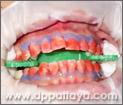 10.สีแดงที่เห็นในภาพคือน้ำยาฟอกสีฟันที่มีความเข้มข้นสูง.