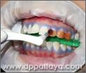 17.การทาน้ำยาฟอกสีฟันซำ้อีกครั้ง.