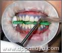 20.ล้างน้ำยาฟอกสีฟันออก.