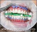 21.แกะเรซิ่นที่ใช้ป้องกันเหงือกไม่ให้สัมผัสกับน้ำยาฟอกสีฟันออก.
