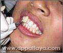 23.นำตัวอย่างสีฟันที่เทียบไว้ก่อนการฟอกมาเปรียบเทียบเพื่อทดสอบความแตกต่างและผลลัพธ์.
