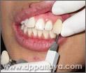 24.การฟอกสีฟันด้วย Cool Light Teeth Whitening เสร็จสิ้นกระบวนการภายใน 30 นาที