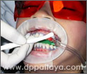 9.การทาน้ำยาหรือเจลฟอกสีฟันที่มีความเข้มข้นสูงลงบนผิวฟัน ต้องใช้ความระมัดระวังอย่างสูง ตั้งแต่ขั้นตอนนี้เป็นต้นไปจนถึงการล้างน้ำยาฟอกสีฟัน คนไข้ห้ามขยับปากและลิ้น ส่วนน้ำลายนั้น ผู้ช่วยทันตแพทย์จะใช้เครื่องดูดน้ำลายพลังสูงคอยดูดน้ำลายออกจากปากคนไข้เอง.