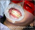 4.สวมอุปกรณ์ช่วยถ่างปาก (Oral Gate) เพื่อช่วยพยุงริมฝีปากตลอดกระบวนการฟอกสีฟัน 30 นาที.