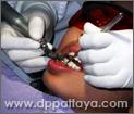 2.ทันตแพทย์จะทำการขัดบริเวณผิวฟัน เพื่อให้น้ำยาฟอกสีฟันสัมผัสกับผิวฟันได้มากที่สุด.