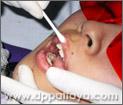 3.เคลือบริมฝีปากด้วยปิโตรเลียมเจล เพื่อป้องกันไม่ให้ผิวริมฝีปากสัมผัสกับน้ำยาฟอกสีฟันเพราะอาจทำให้ผิวไหม้.