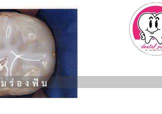 การเคลือบหลุมร่องฟัน ( Sealant )