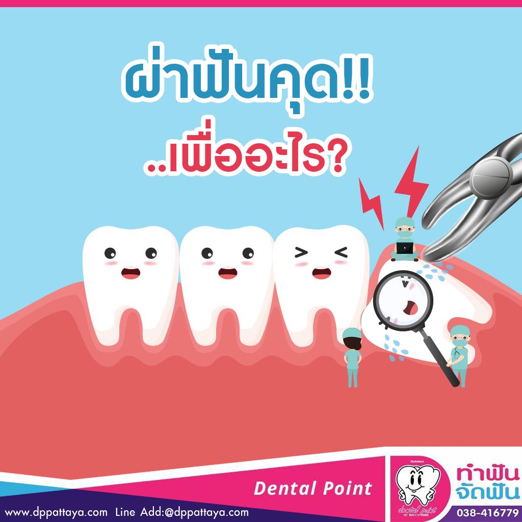 ผ่าฟันคุดเพื่ออะไร